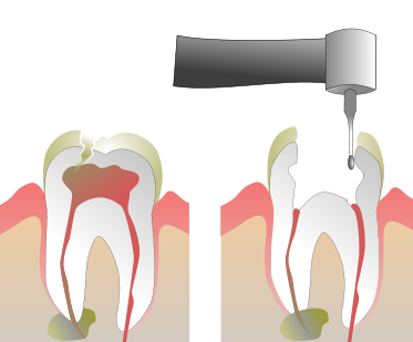 root canal therapy max dental @ yaletown dentist