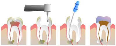 root canal therapy yaletown dentist max dental