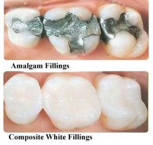 white fillings metal fillings max dental @ yaletown