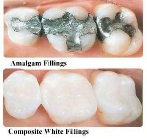 white fillings metal fillings max dental @ yaletown